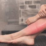 cellulitis treatment